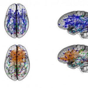 brain.630×360