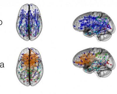 DIFFERENZE CEREBRALI UOMO-DONNA: esistono davvero? Cosa ne dicono le Neuroscienze?